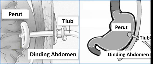 Tiub Gastrostomi